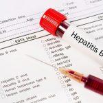 Hepatitis b viral load