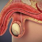 List of Drugs that causes erectile dysfunction