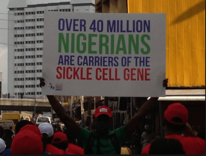 Percentage of persons with sickle cell anemia across the 36 states in Nigeria