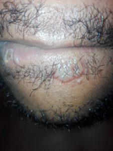 See the classical pictures of oral herpes (cold sores)