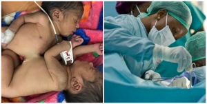 A team of 55 Nigerian doctors successfully separate conjoined twins at FMC Keffi