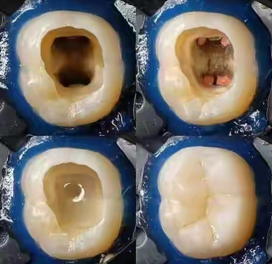 How much does Root Canal Treatment Cost in Nigeria?