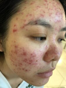 How to treat hormonal acne naturally and with pills