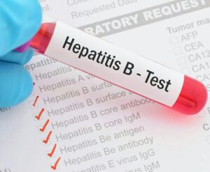 How much is the cost of hepatitis B test in Nigeria + hepatitis B viral load test price in Nigeria