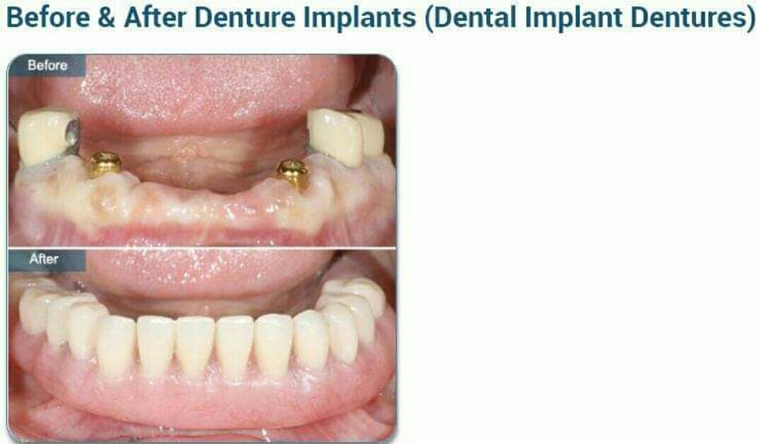 How much is the cost of dentures in Nigeria? (+ denture care)