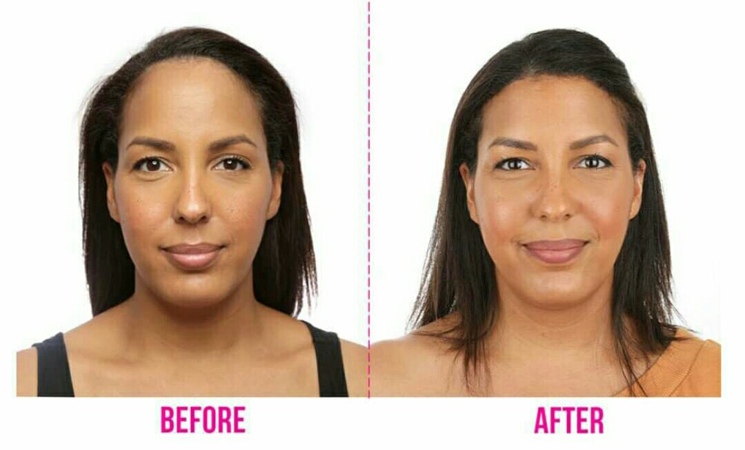 How much is the cost of forehead reduction surgery in Nigeria?