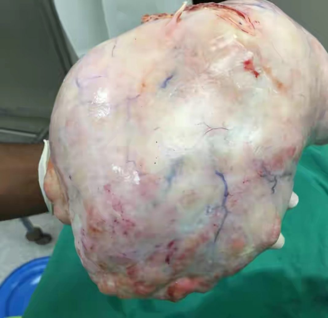 arian Cyst Removal: Cost of ovarian cyst surgery in Nigeria