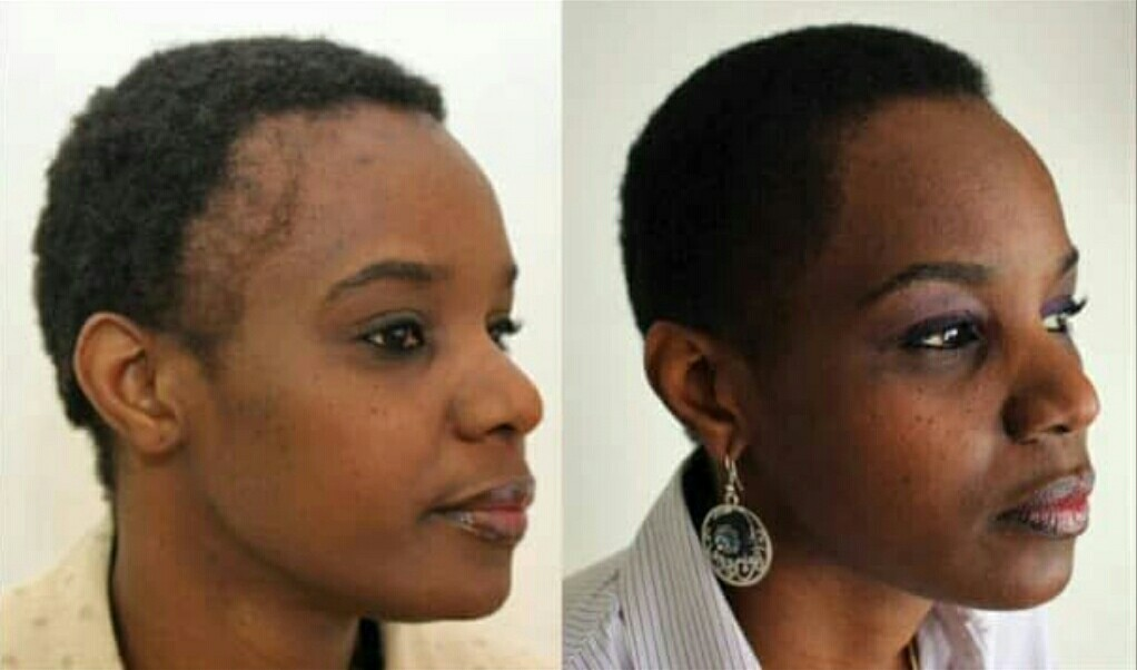 How much does hair transplant cost in Nigeria?
