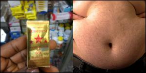 Yodi, Dikonga, Dexa, Xasten Tablet for weight gain side effects
