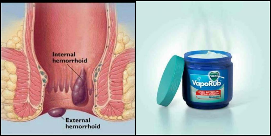 How to use Vicks VapoRub for hemorrhoids Pain Relief