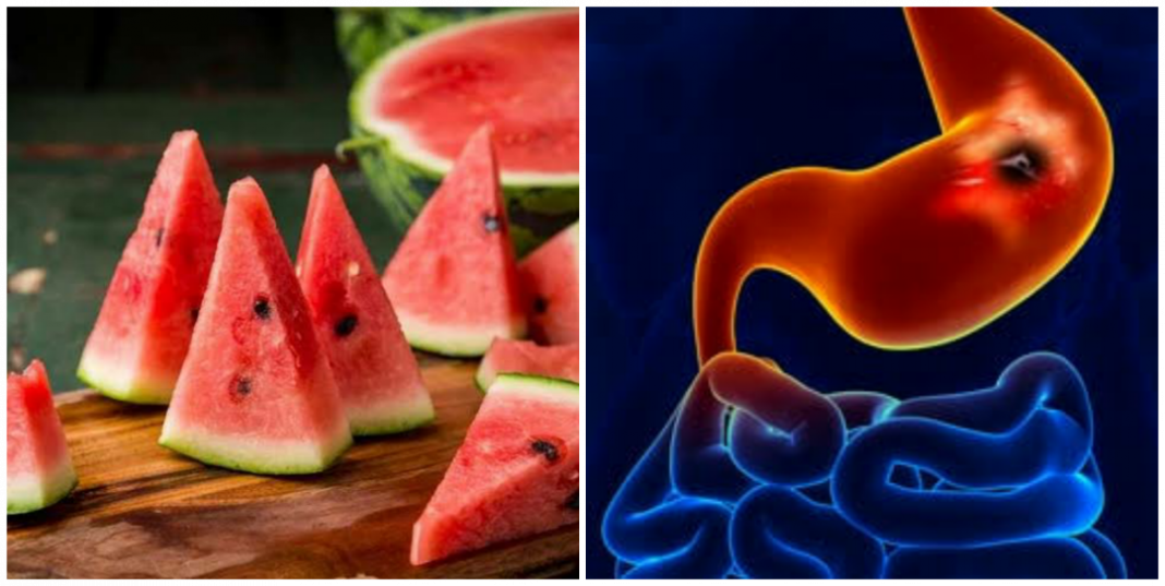 Is watermelon good for ulcer patient?