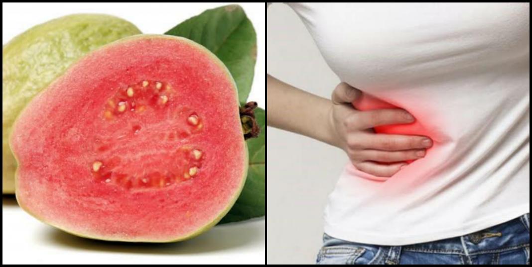 Do guava seed cause appendix/appendicitis