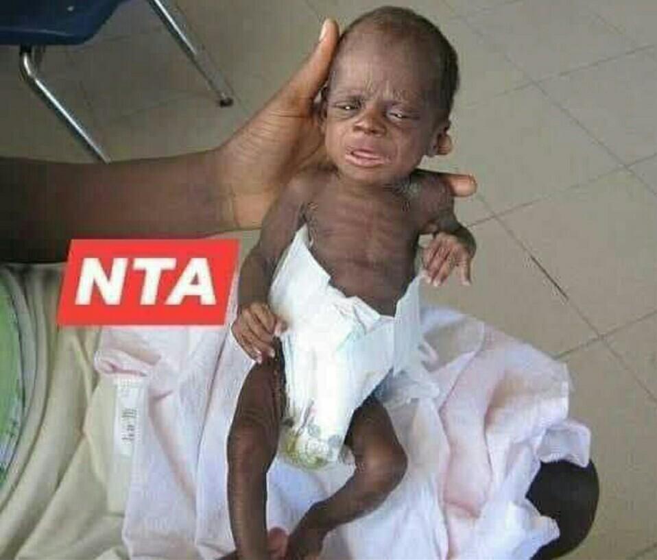 NTA in babies