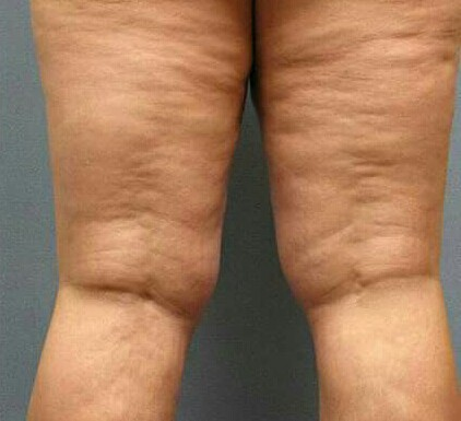 THE CAUSES, CURES, TREATMENT, CREAMS & PREVENTION OF CELLULITE